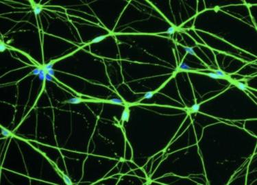 脳型情報処理機械論#1-2(ニューロンやシナプスの機能と仕組みを考える)